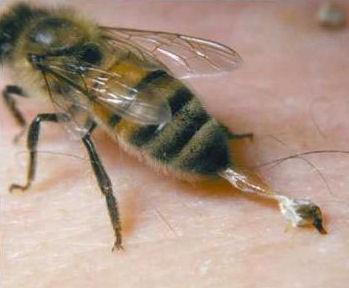 Dard d'abeille